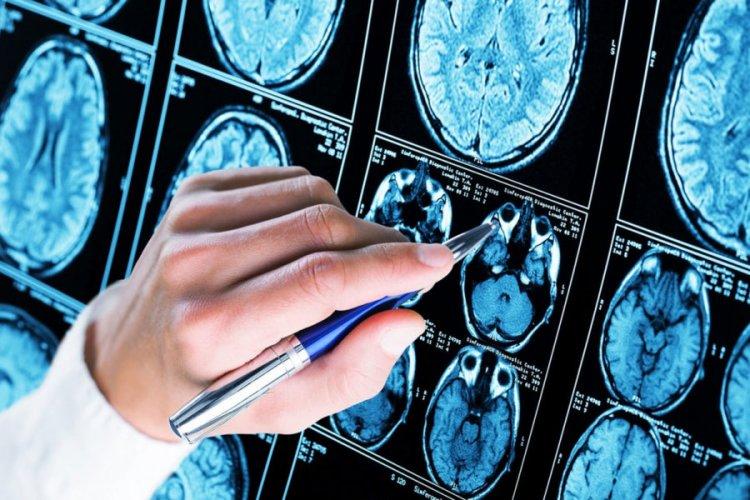 Болест на Алцхаймер - какво е това?