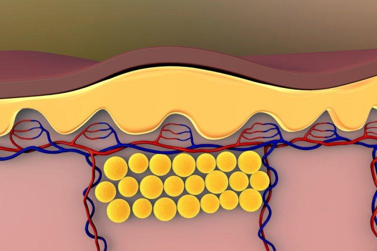Съхранение на инсулин и коремни мазнини