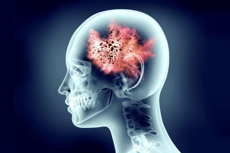 Омега-3 срещу мигрена