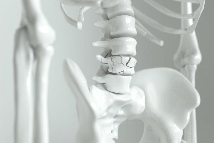 Остеопороза - какво е това и защо възниква?